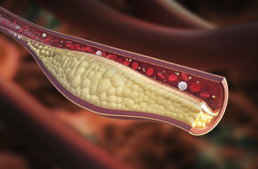O que é o Colesterol?